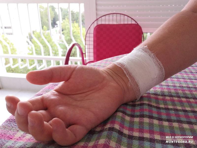 Обратился по страховке из-за болячки на руке